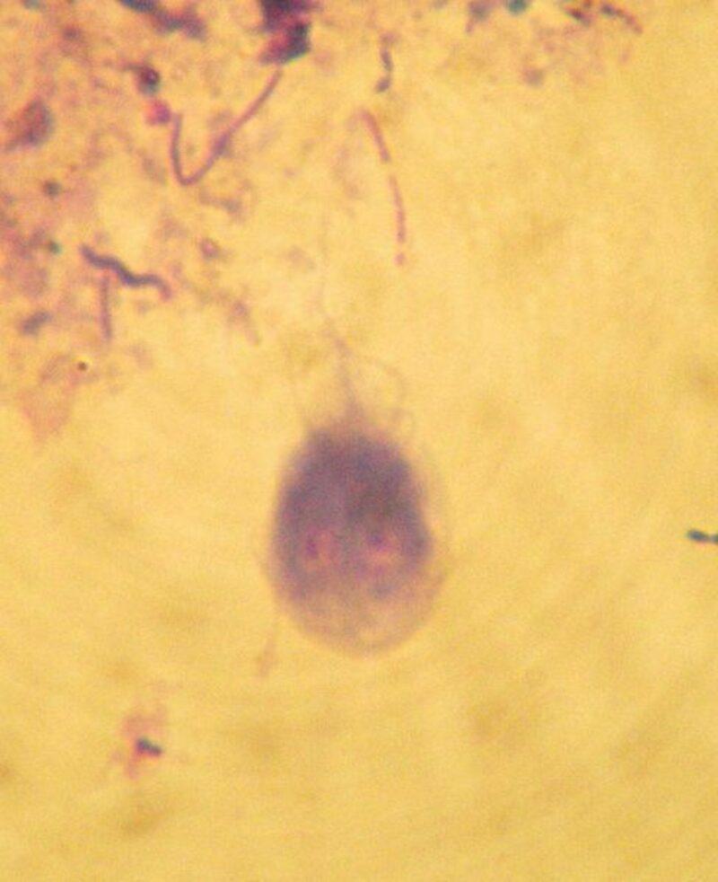 488px Giardia intestinalis dog